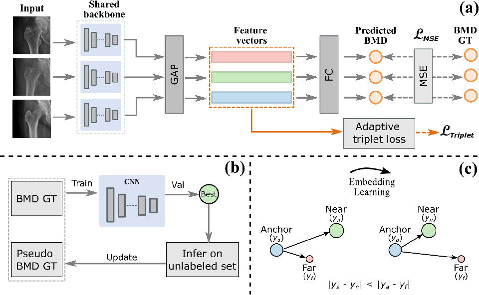 Figure 1 for Semi-Supervised Learning for Bone Mineral Density Estimation in Hip X-ray Images