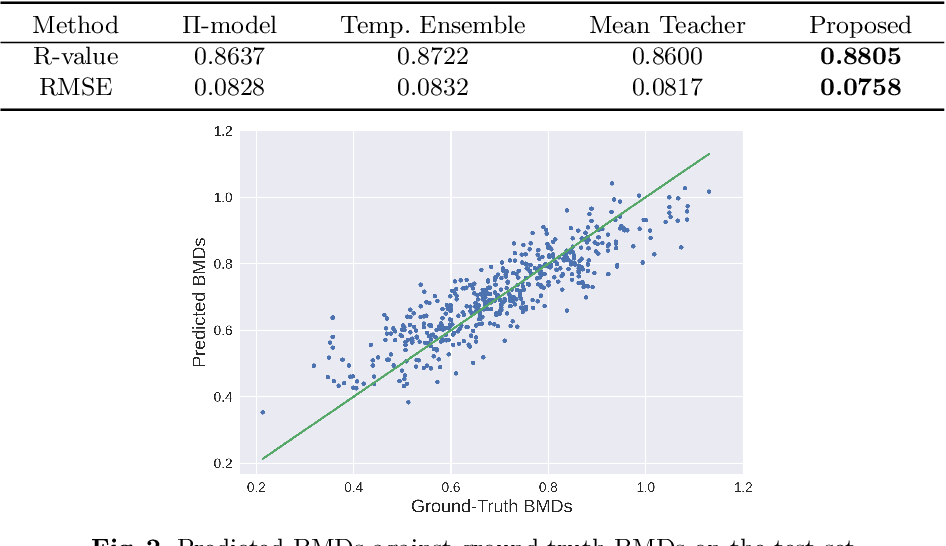 Figure 3 for Semi-Supervised Learning for Bone Mineral Density Estimation in Hip X-ray Images