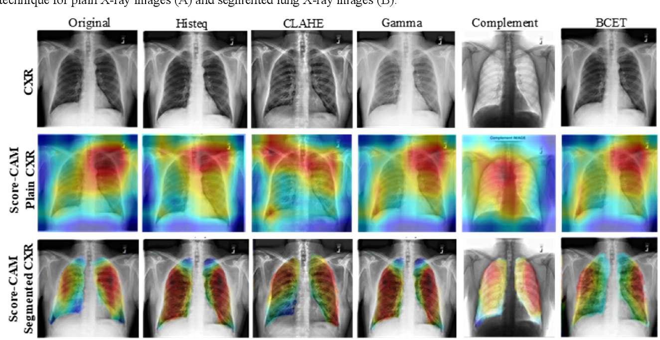 Figure 3 for Exploring the Effect of Image Enhancement Techniques on COVID-19 Detection using Chest X-rays Images