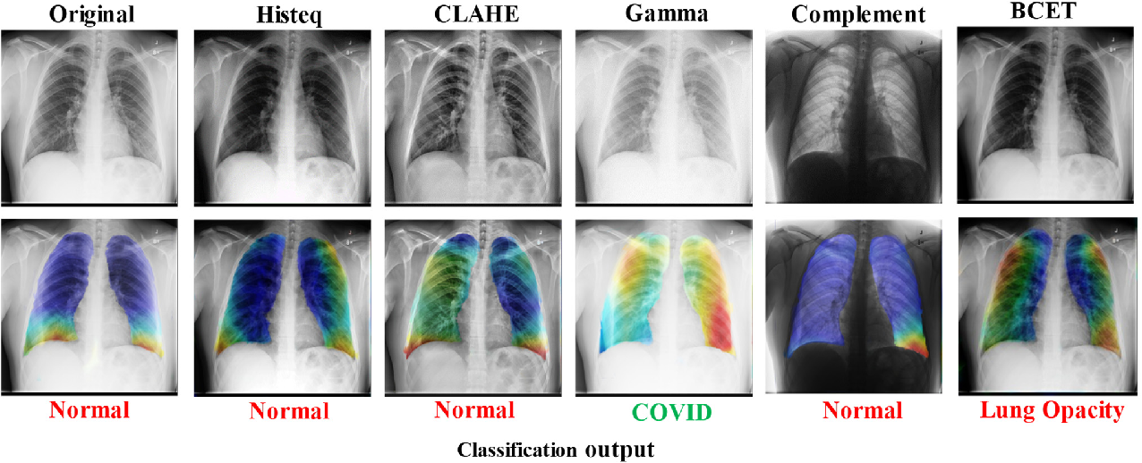 Figure 4 for Exploring the Effect of Image Enhancement Techniques on COVID-19 Detection using Chest X-rays Images