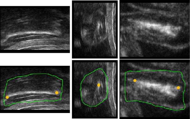 Figure 1 for Joint Segmentation and Landmark Localization of Fetal Femur in Ultrasound Volumes