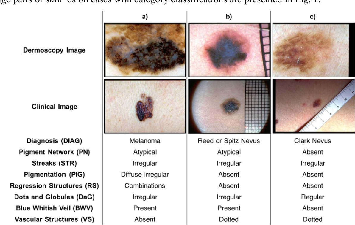 Figure 1 for Graph-Based Intercategory and Intermodality Network for Multilabel Classification and Melanoma Diagnosis of Skin Lesions in Dermoscopy and Clinical Images