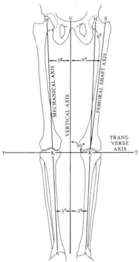 Figure 3 From The Biomechanics Of Trans Femoral Amputation