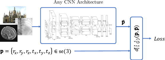 Computing CNN Loss and Gradients for Pose Estimation with Riemannian