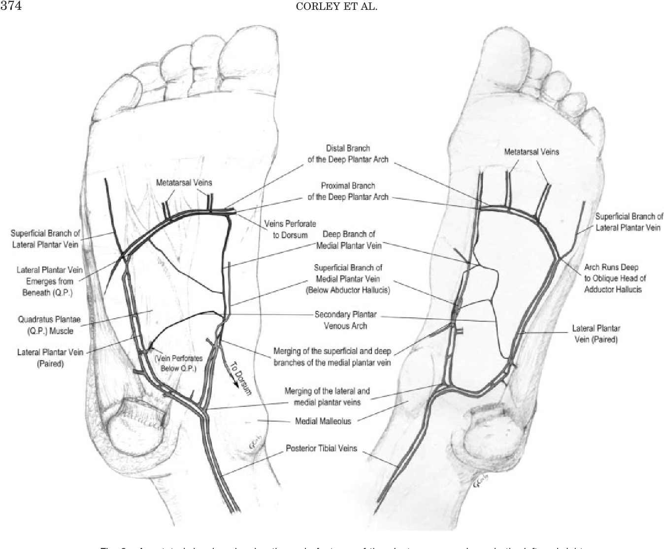 Figure 3 from The anatomy and physiology of the venous foot pump ...