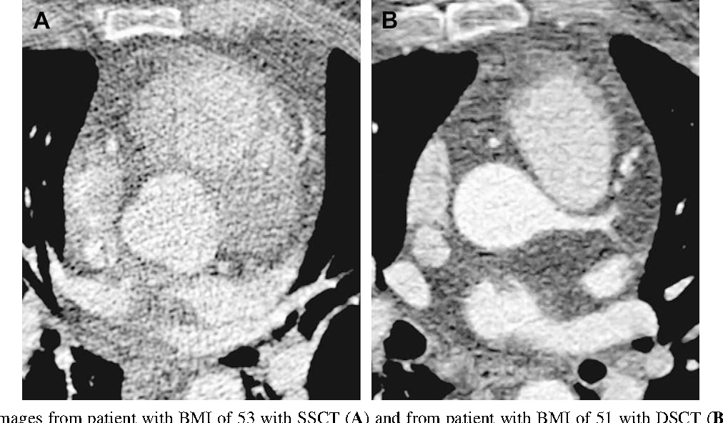 Figure 2 Axial images from patient with BMI of 53 with SSCT (A) a higher tube-current compared with SSCT (400 compared with 360 mAs/r measured as the standard deviation of the mean attenuation in the aorta