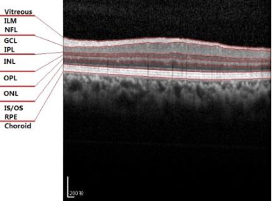 Figure 4 for 3D Automatic Segmentation Method for Retinal Optical Coherence Tomography Volume Data Using Boundary Surface Enhancement