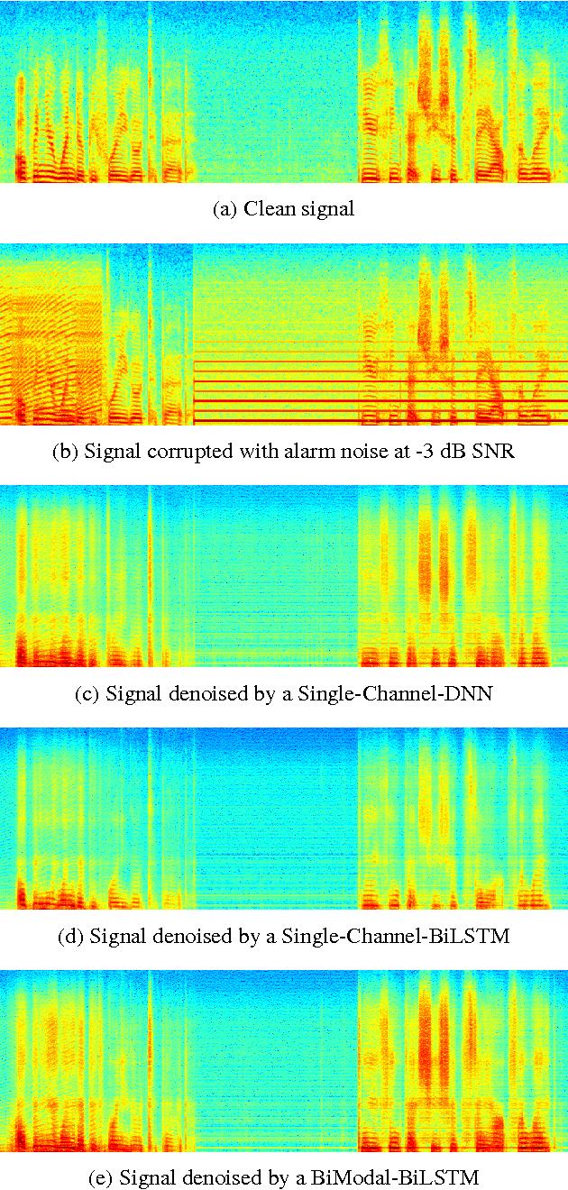 Figure 4 for Multi-Modal Hybrid Deep Neural Network for Speech Enhancement
