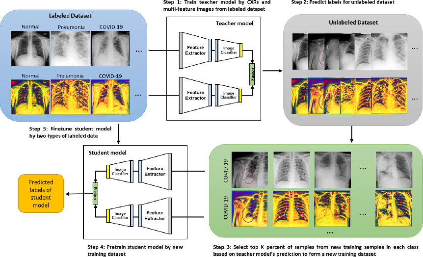 Figure 3 for Multi-Feature Semi-Supervised Learning for COVID-19 Diagnosis from Chest X-ray Images