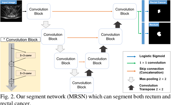 Figure 3 for Multi-Task Learning with a Fully Convolutional Network for Rectum and Rectal Cancer Segmentation