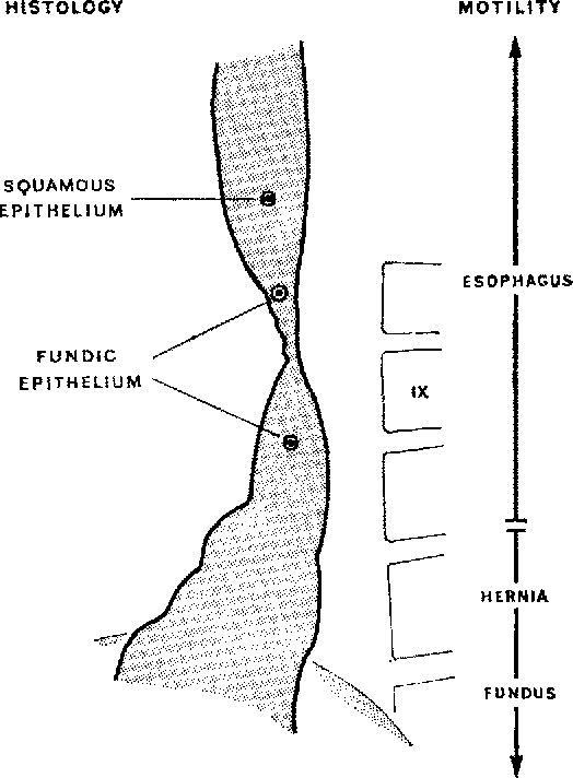 Esophageal Strictures And Lower Esophagus Lined With Columnar