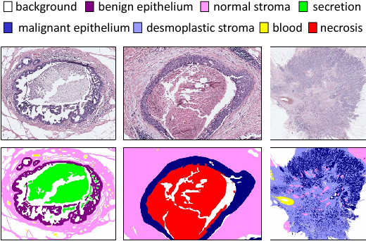 Figure 1 for Learning to Segment Breast Biopsy Whole Slide Images