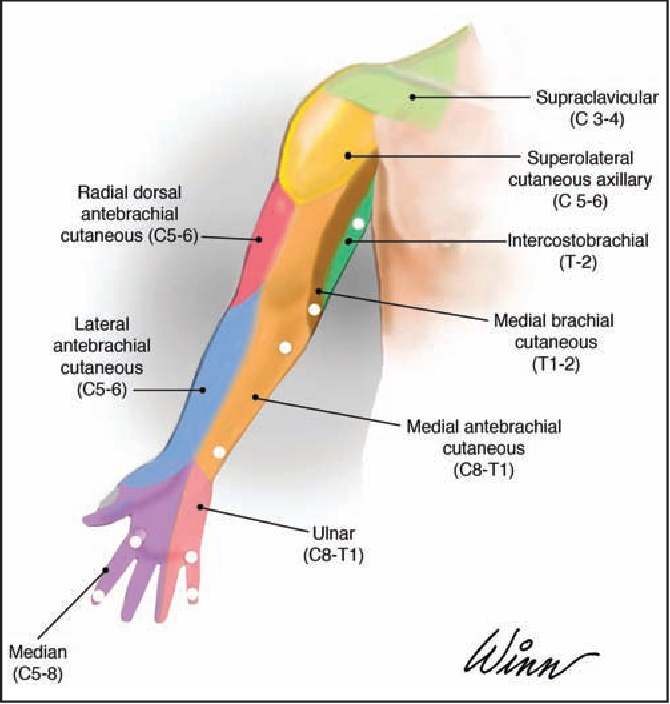 Figure 1 from Lymphatic and Sensory Function of the Upper Limb After