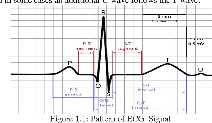 Design Approach Of Heart Beat Measurement Using ECG Pattern Stunning Ecg Pattern