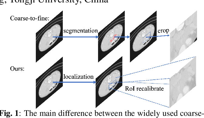 Figure 1 for L-SNet: from Region Localization to Scale Invariant Medical Image Segmentation