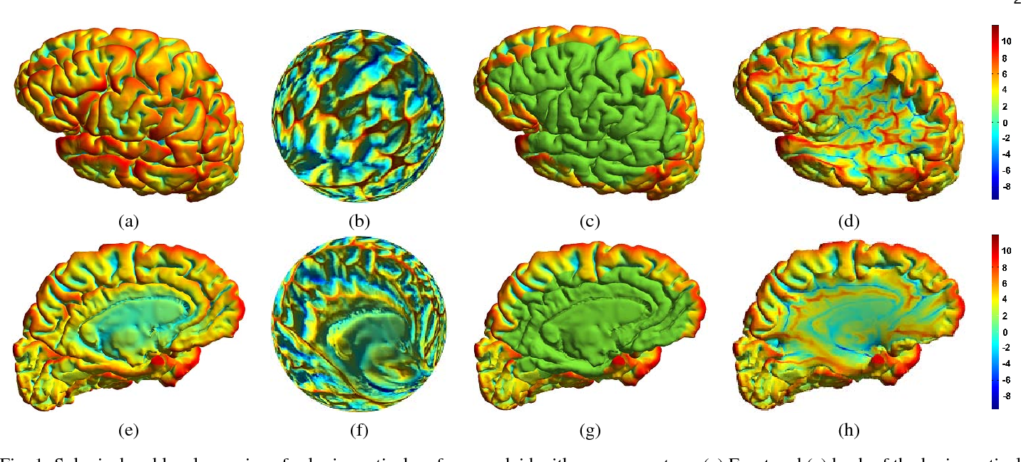 Figure 1 for LMap: Shape-Preserving Local Mappings for Biomedical Visualization