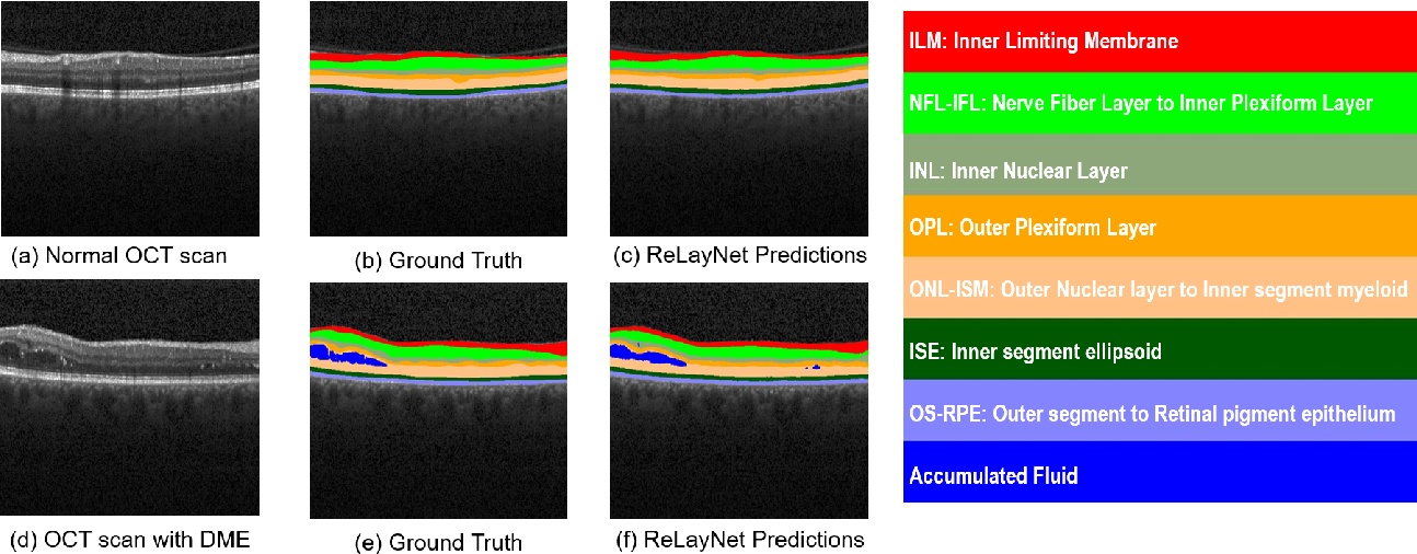 Figure 1 for ReLayNet: Retinal Layer and Fluid Segmentation of Macular Optical Coherence Tomography using Fully Convolutional Network