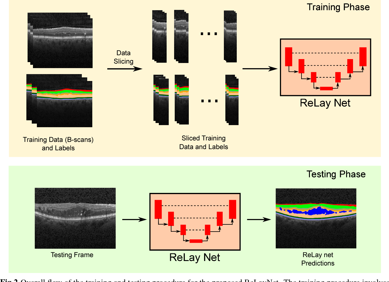 Figure 3 for ReLayNet: Retinal Layer and Fluid Segmentation of Macular Optical Coherence Tomography using Fully Convolutional Network