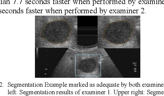Figure 2 for In-depth Assessment of an Interactive Graph-based Approach for the Segmentation for Pancreatic Metastasis in Ultrasound Acquisitions of the Liver with two Specialists in Internal Medicine