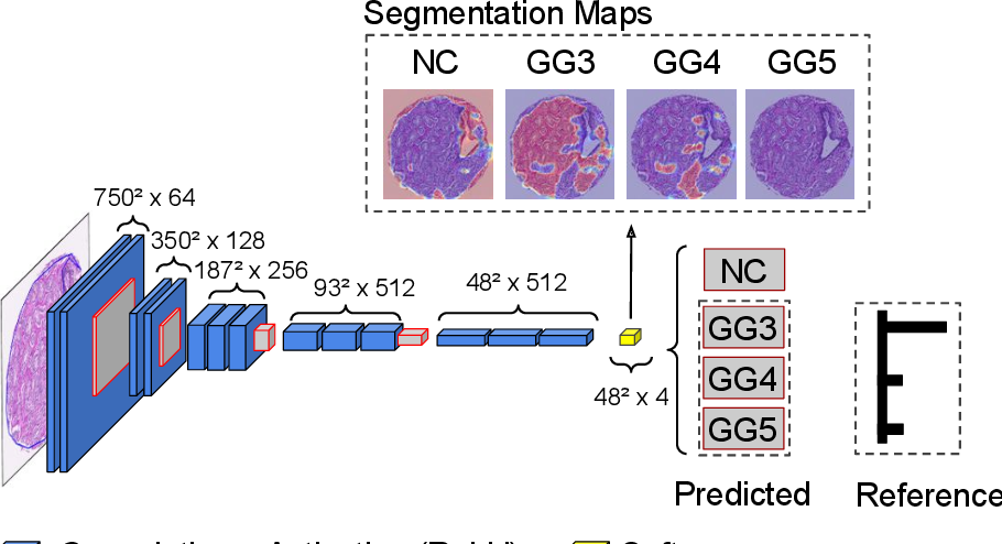 Figure 3 for WeGleNet: A Weakly-Supervised Convolutional Neural Network for the Semantic Segmentation of Gleason Grades in Prostate Histology Images