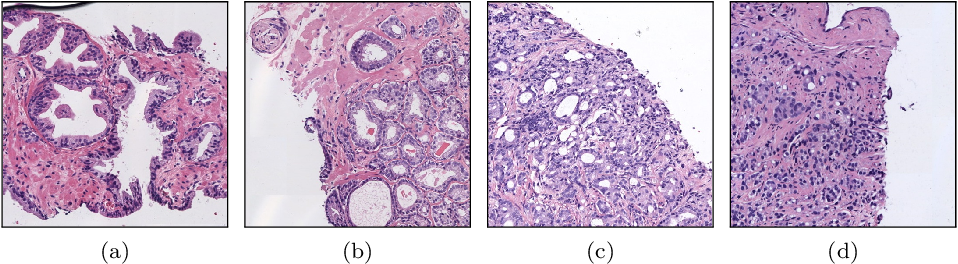 Figure 1 for WeGleNet: A Weakly-Supervised Convolutional Neural Network for the Semantic Segmentation of Gleason Grades in Prostate Histology Images