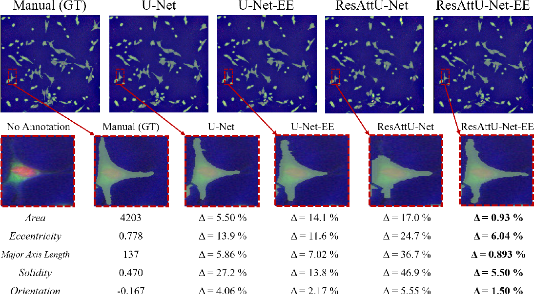 Figure 4 for Segmentation with Residual Attention U-Net and an Edge-Enhancement Approach Preserves Cell Shape Features