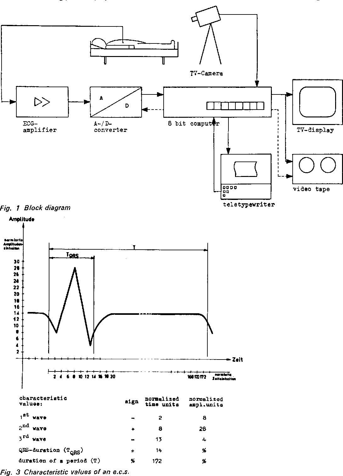 Figure 1 from online analysis of ecg arrhythmias with a digital 1 block diagram ccuart Choice Image