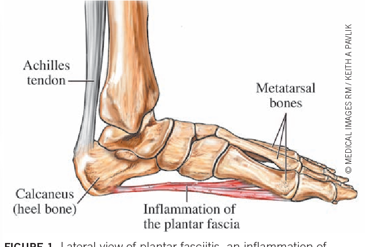 Figure 1 From Plantar Fasciitis A Review Of Treatments Semantic