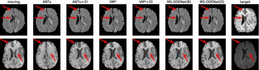 Figure 4 for Multi-scale Neural ODEs for 3D Medical Image Registration