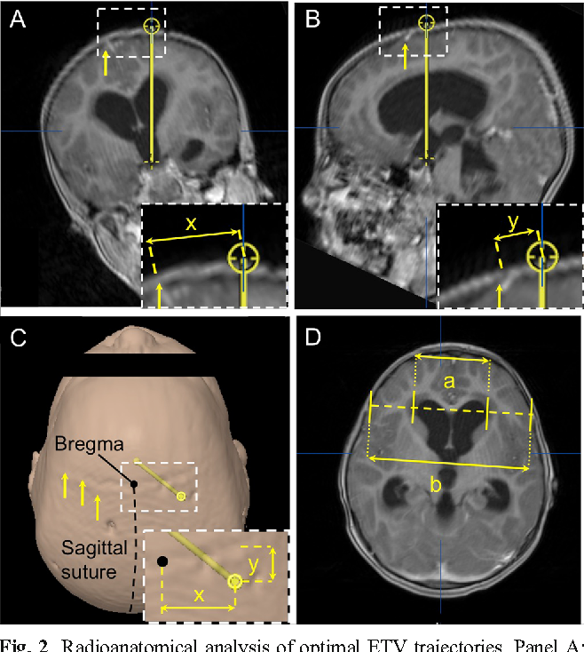 Operative Planning Aid For Optimal Endoscopic Third Ventriculostomy