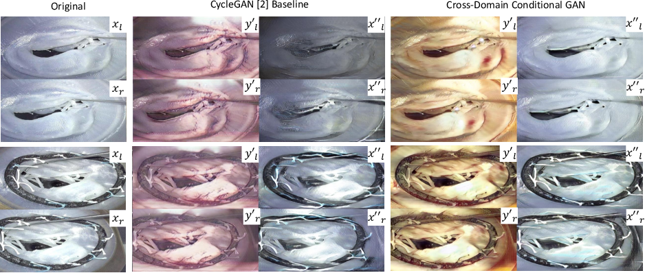 Figure 3 for Cross-Domain Conditional Generative Adversarial Networks for Stereoscopic Hyperrealism in Surgical Training
