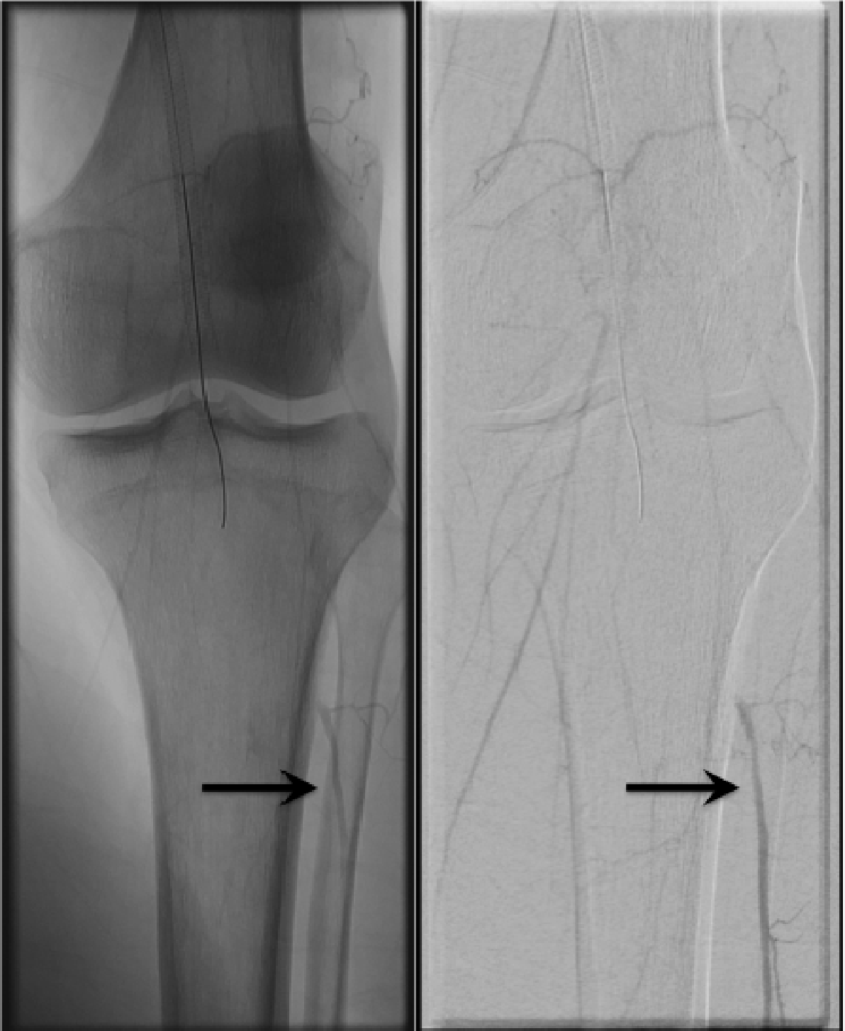 Figure 13: Distal embolization a DEP device. The terminal popliteal artery is occluded with proximal reconstitution of the anterior tibial artery from collaterals (arrows).