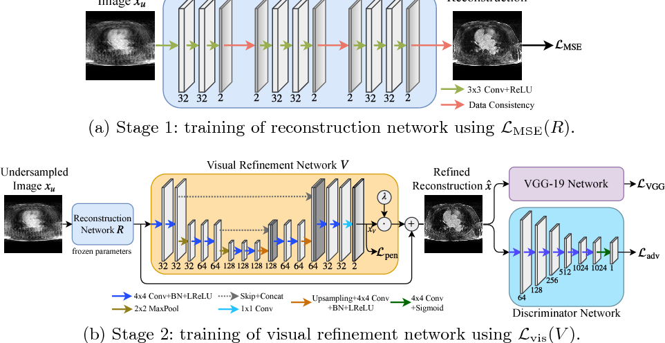 Figure 1 for Adversarial and Perceptual Refinement for Compressed Sensing MRI Reconstruction