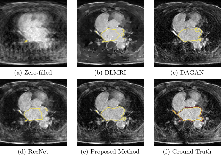 Figure 3 for Adversarial and Perceptual Refinement for Compressed Sensing MRI Reconstruction