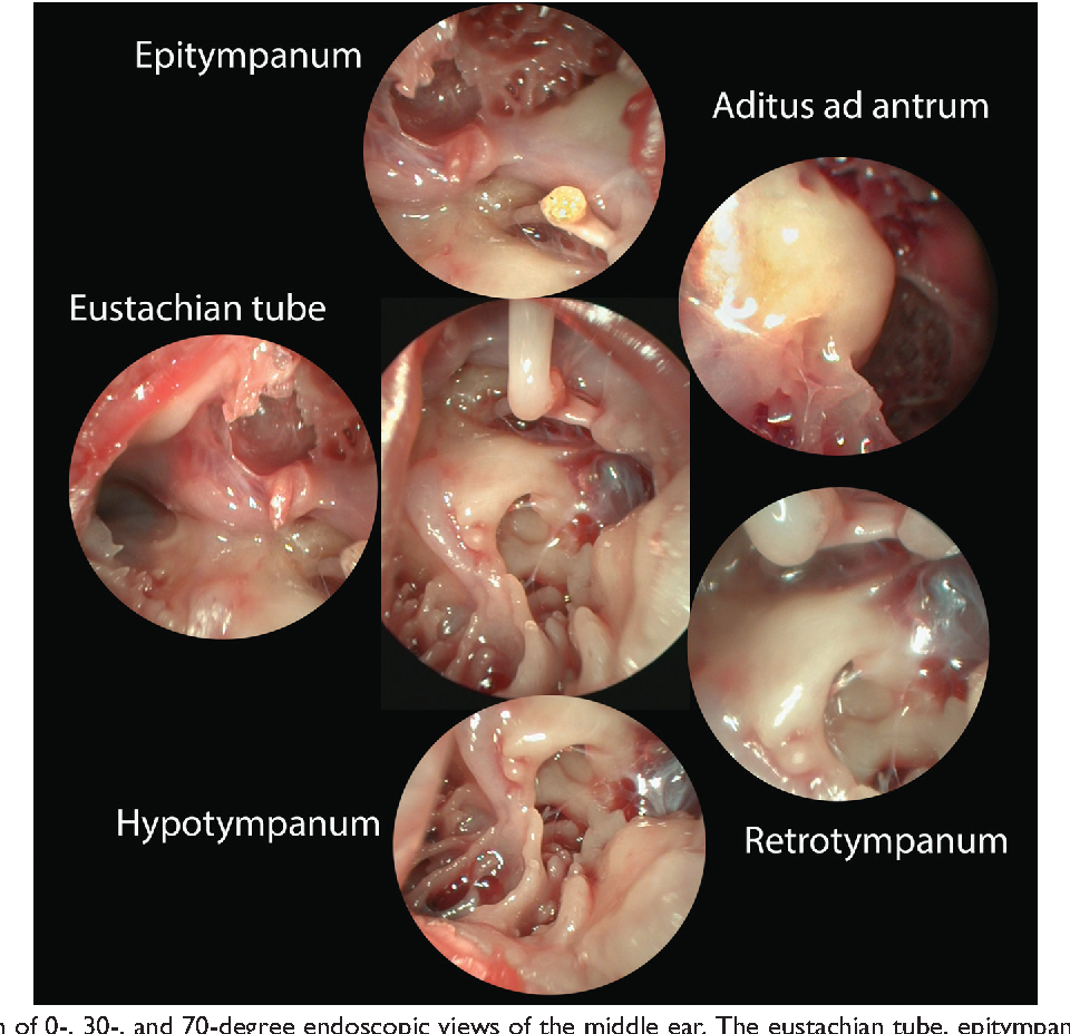 Figure 5 from Endoscopic anatomy of the pediatric middle ear ...