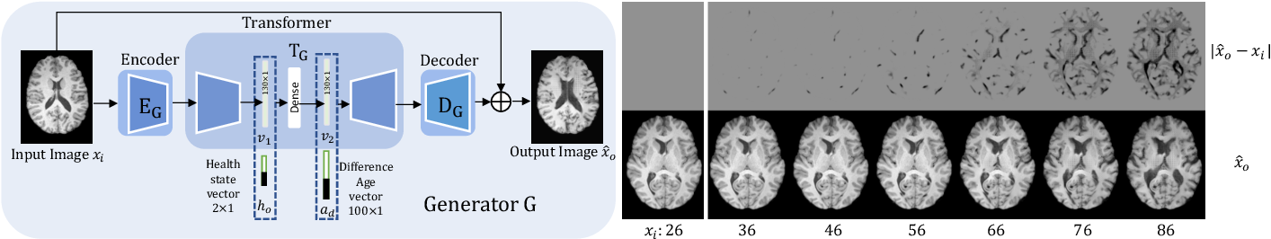 Figure 1 for Learning to synthesise the ageing brain without longitudinal data