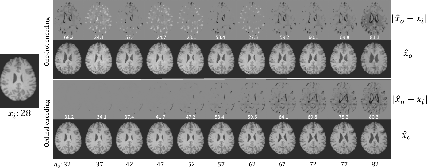 Figure 2 for Learning to synthesise the ageing brain without longitudinal data