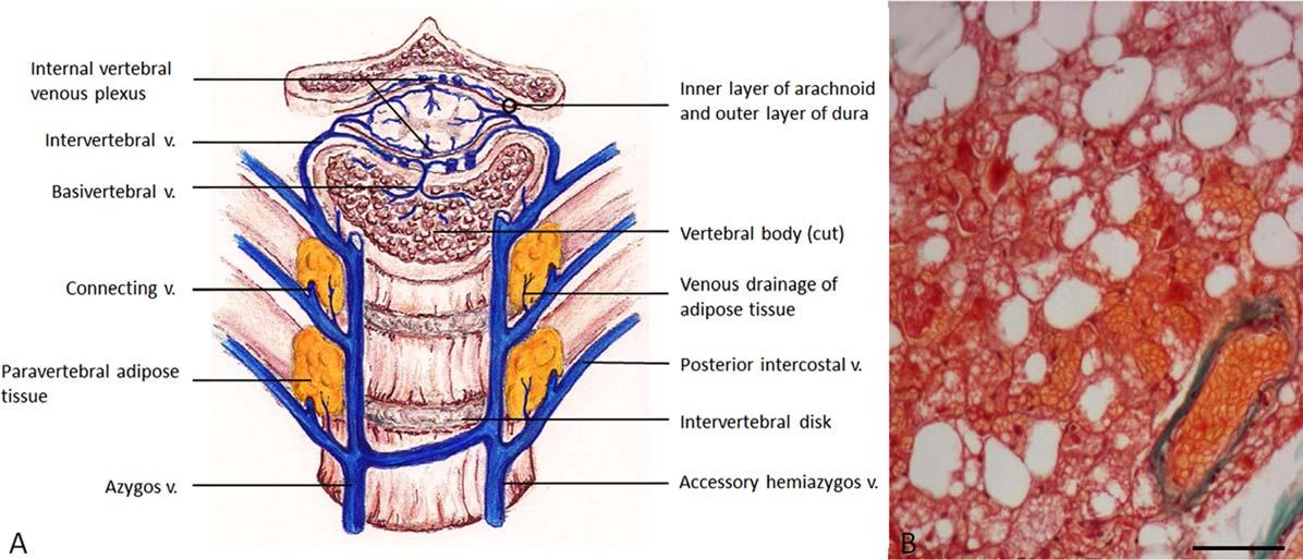 Structure of internal vertebral venous plexus - Semantic Scholar