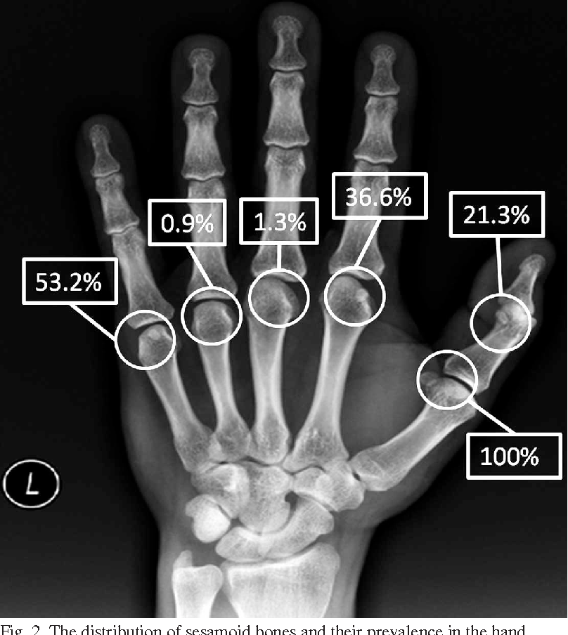 Figure 2 From Prevalence And Distribution Of Sesamoid Bones Of The