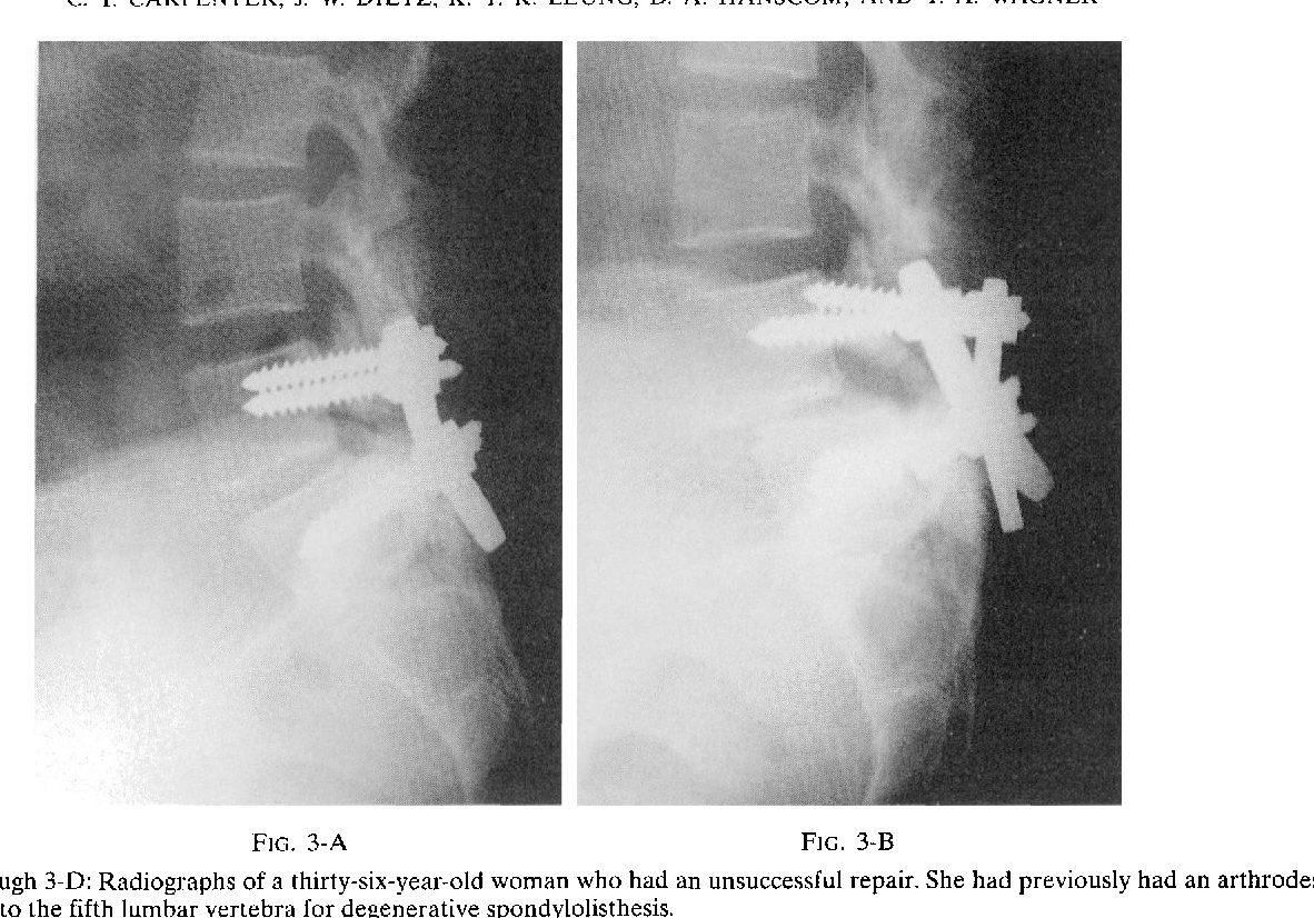 Figure 3 From Repair Of A Pseudarthrosis Of The Lumbar Spine A