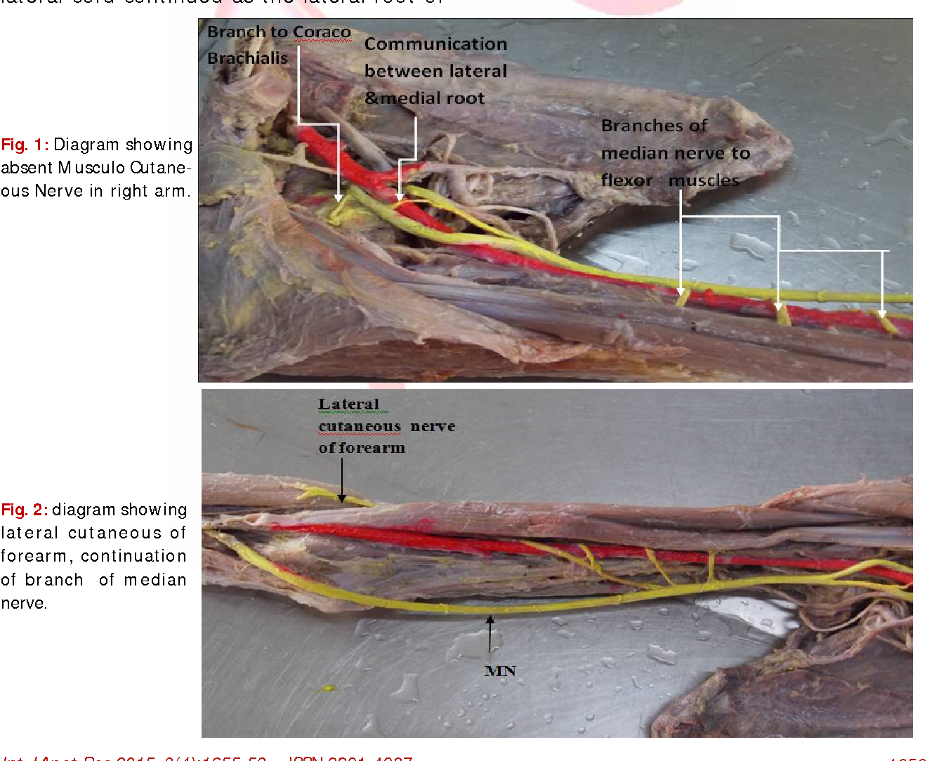 Bilateral Multiple Variations In The Upper Extremity Of A Human