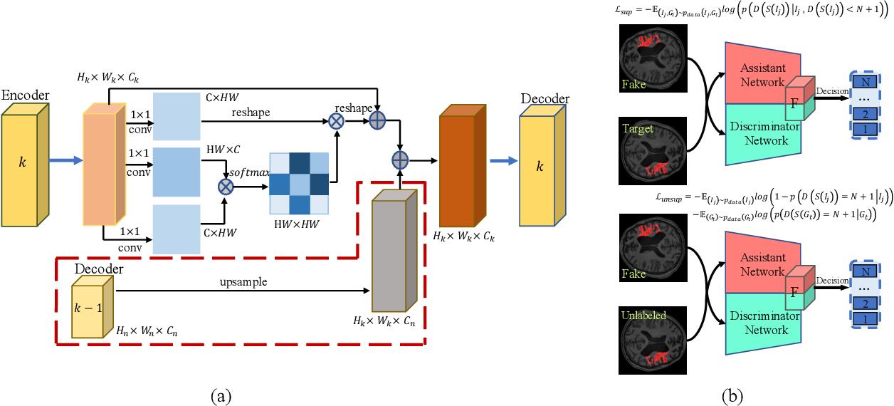Figure 1 for Brain Stroke Lesion Segmentation Using Consistent Perception Generative Adversarial Network