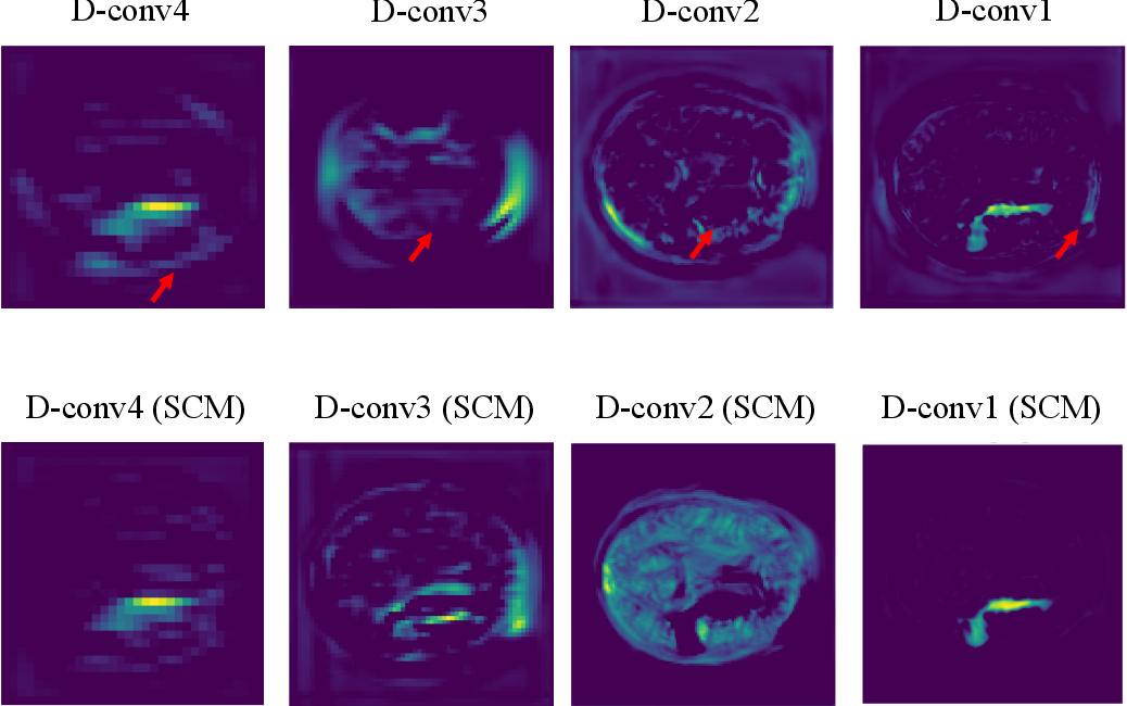 Figure 3 for Brain Stroke Lesion Segmentation Using Consistent Perception Generative Adversarial Network