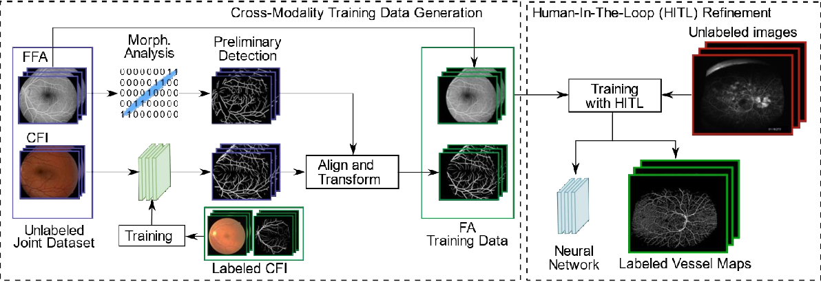 Figure 3 for A Novel Deep Learning Pipeline for Retinal Vessel Detection in Fluorescein Angiography