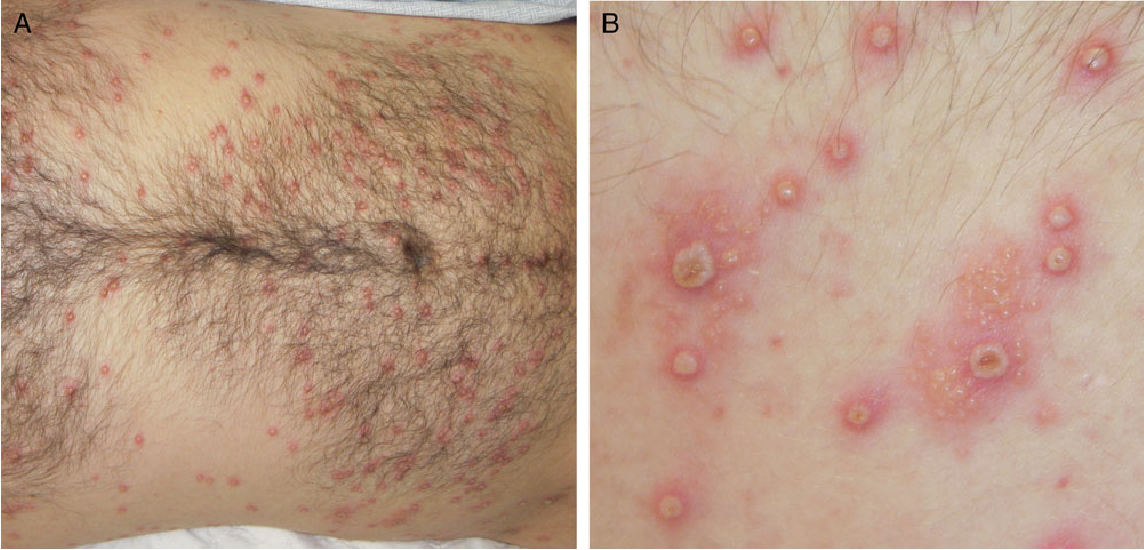 Figure 1 From Disseminated Primary Herpes Simplex Virus