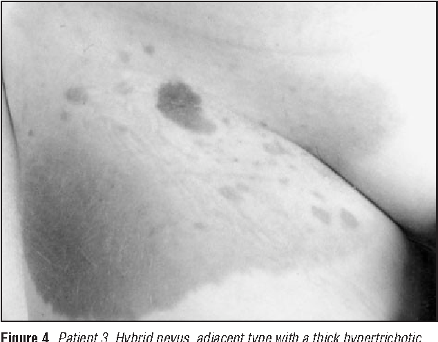 Figure 4. Patient 3. Hybrid nevus, adjacent type with a thick hypertrichotic inferolateral portion appearing as a classic congenital nevus, next to a portion involving the inguinal crease that has the appearance of a speckled lentiginous nevus.