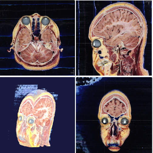 Figure 3 for Comparison of the Deep-Learning-Based Automated Segmentation Methods for the Head Sectioned Images of the Virtual Korean Human Project