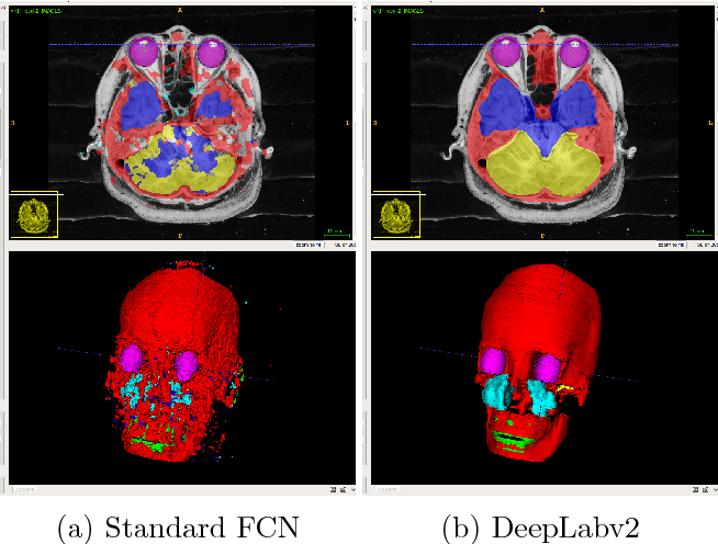 Figure 4 for Comparison of the Deep-Learning-Based Automated Segmentation Methods for the Head Sectioned Images of the Virtual Korean Human Project