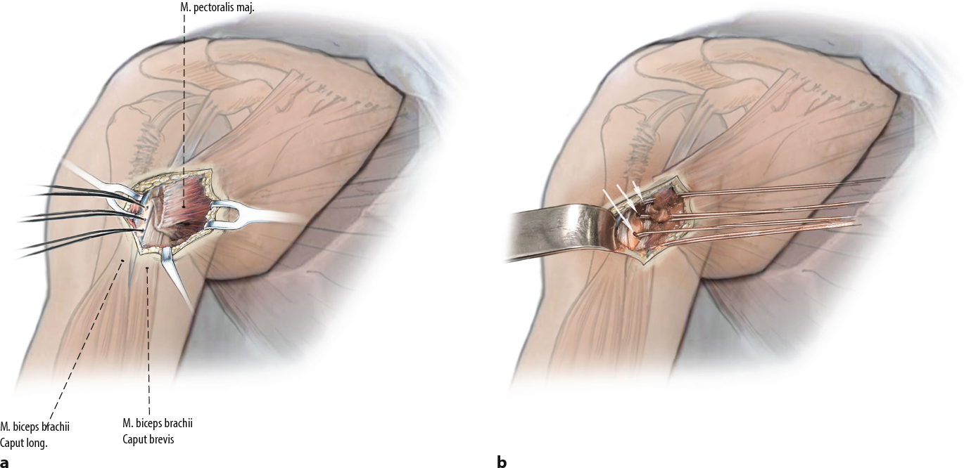 fig  68 a after preparation andmobilization of themajor pectoralmuscle, the  insertion site (medial