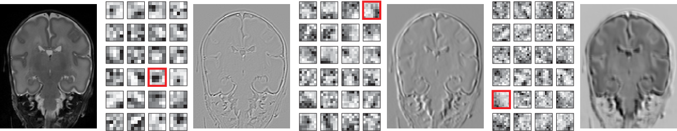 Figure 2 for Automatic segmentation of MR brain images with a convolutional neural network